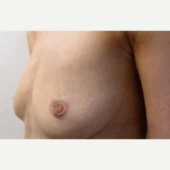 25-34 year old woman treated with Breast Implants before 3764902