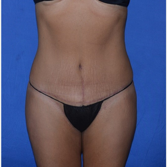 35-44 year old woman treated with No-Drain Tummy Tuck after 3655677