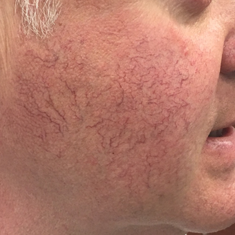 Nordlys Hybrid system to remove telangectasias of the cheeks - single treatment. before 3847562