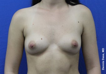 Breast implants before 871546