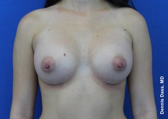 Breast implants after 871546