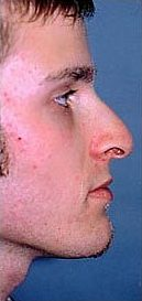 Rhinoplasty on 23-year-old 953381