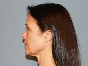 55 Year Old Minifacelift patient 1474871