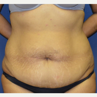 35-44 year old woman treated with Tummy Tuck before 3135269