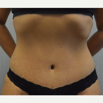 35-44 year old woman treated with Tummy Tuck after 3135269