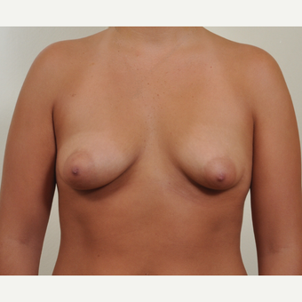 25-34 year old woman treated with Breast Augmentation with constricted (tubular,tuberous) breast before 2989432