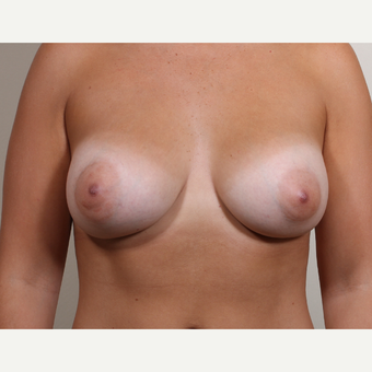 25-34 year old woman treated with Breast Augmentation with constricted (tubular,tuberous) breast after 2989432