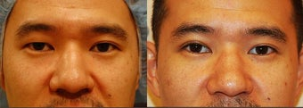 Male Asian Eyelid Surgery before 906396