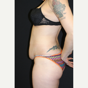 37  year old woman treated with Liposuction before 3076594