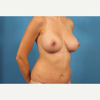 25-34 year old woman treated with Breast Implants after 3787149
