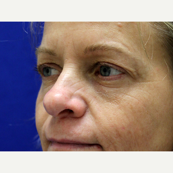 45-54 year old woman treated with Eyelid Surgery before 3239472