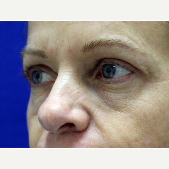 45-54 year old woman treated with Eyelid Surgery after 3239472