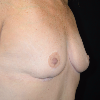 45-54 year old woman treated with Breast Reduction after 3810479