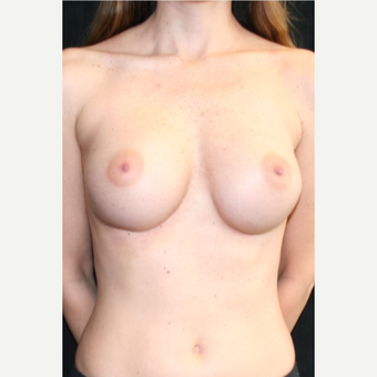 25-34 year old woman treated with Breast Augmentation after 3399527