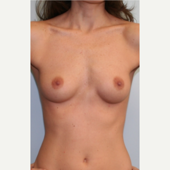 25-34 year old woman treated with Breast Augmentation before 3399527