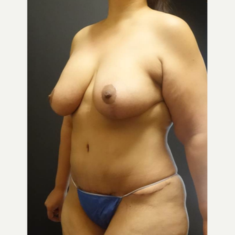 35-44 year old woman treated with Mommy Makeover after 3434590