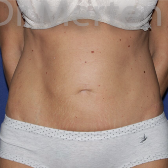 Tummy Tuck before 3599400