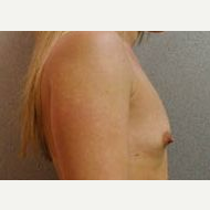 25-34 year old woman treated with Breast Implants before 3108978