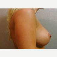 25-34 year old woman treated with Breast Implants after 3108978
