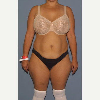 25-34 year old woman treated with Tummy Tuck before 3558499