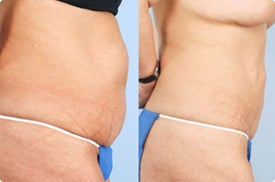 Smart Lipo: Abdomen before 989031