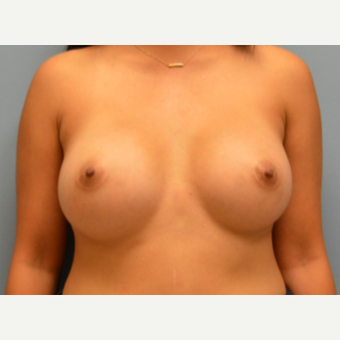 25-34 year old woman treated with Breast Augmentation after 3170678
