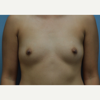 25-34 year old woman treated with Breast Augmentation before 3170678