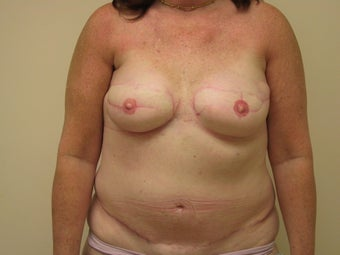 Breast Reconstruction after mastectomy after 1103515
