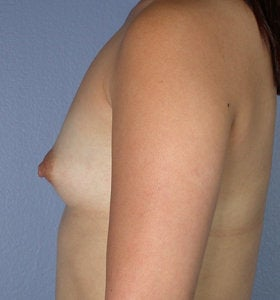 Breast Augmentation before 281444