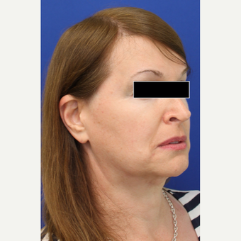 35-44 year old woman treated with Facial Feminization Surgery before 3742523