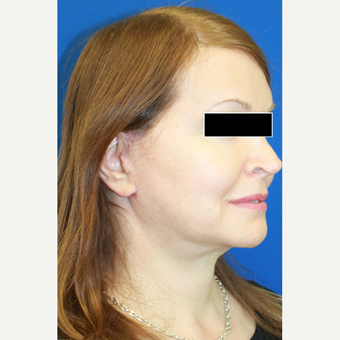 35-44 year old woman treated with Facial Feminization Surgery after 3742523