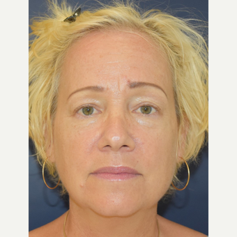 55-64 year old woman treated with Lower Face Lift before 3503983