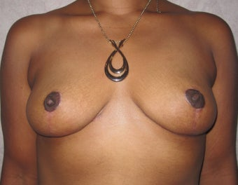 Breast reduction in 43 year old woman after 999046