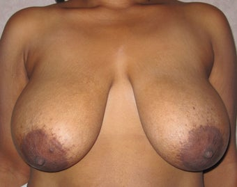 Breast reduction in 43 year old woman before 999046