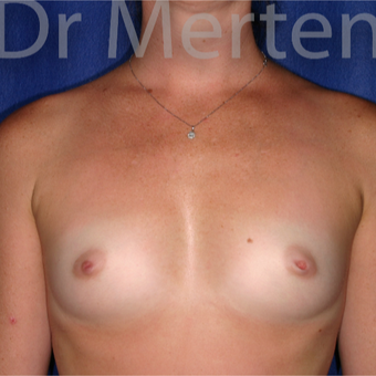 18-24 year old woman treated with Breast Augmentation before 3551203