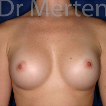 18-24 year old woman treated with Breast Augmentation after 3551203