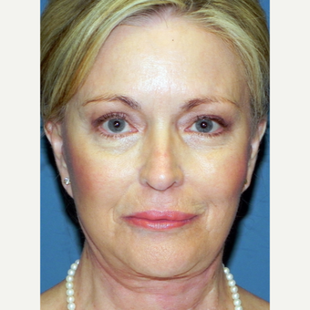 65-74 year old woman treated with Facelift after 3701944