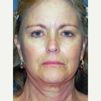 65-74 year old woman treated with Facelift before 3701944