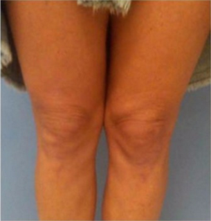 45-54 year old woman treated with Ultherapy after 2658124
