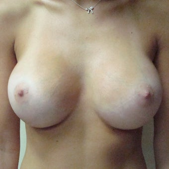 18-24 year old woman treated with Mentor Breast Implants after 2596173