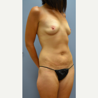 35-44 year old woman treated with Mommy Makeover before 3690444
