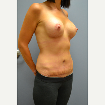 35-44 year old woman treated with Mommy Makeover after 3690444