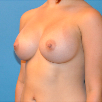 Breast Augmentation after 3377397