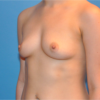 Breast Augmentation before 3377397