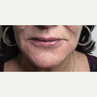 Lip Augmentation after 3065465