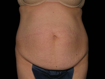 Abdominoplasty with 360 Circumferential Trunk SAFELipo before 1079760