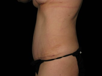 Abdominoplasty with 360 Circumferential Trunk SAFELipo 1079760