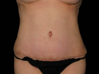 Abdominoplasty with 360 Circumferential Trunk SAFELipo after 1079760