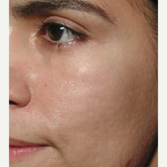 25-34 year old woman treated with Skin Tightening