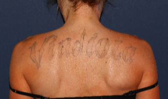 Back Tattoo treated with Laser Tattoo Removal